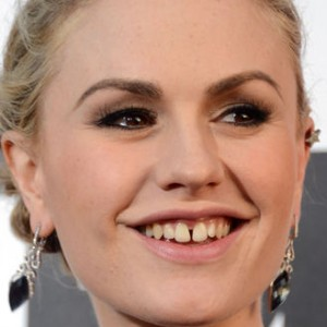14 Stars Who Have Terrible Teeth