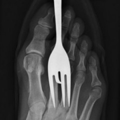 15 Ridiculous X-Rays